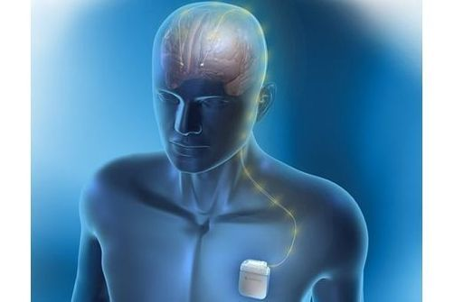 neurostimulation parkinson