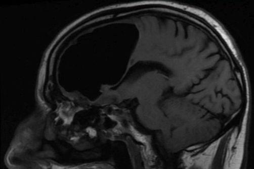 Une poche d'air de 9 cm découverte dans le cerveau d'un patient