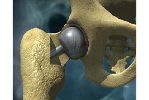 prothèse de hanche métal