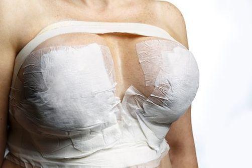 Prothèse mammaire et cancer