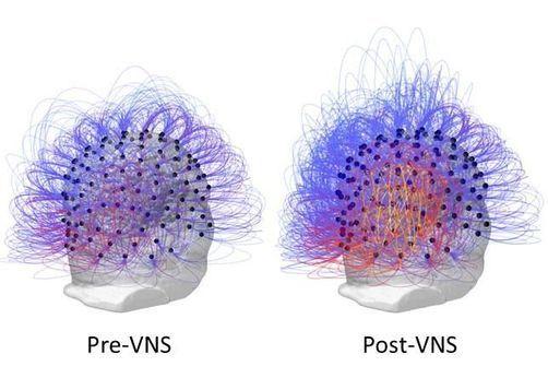 stimulation nerf vague et état végétatif