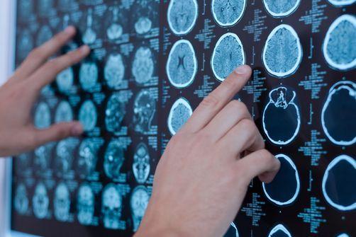 Repérer les risques d'Alzheimer dès l'âge de 20 ans