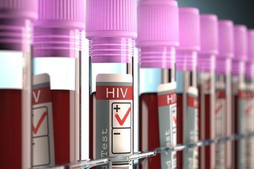 USA : 80% des infections au VIH par des gens ignorant leur statut ou pas traités