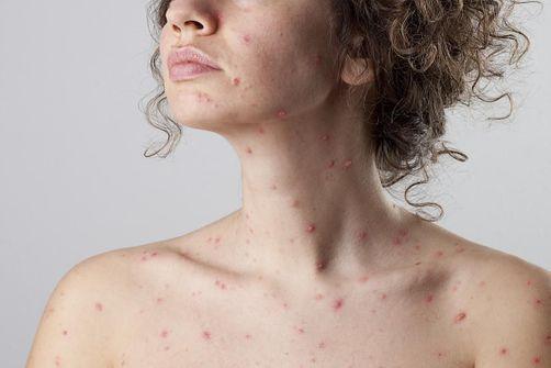 La varicelle continue de sévir dans une dizaine de régions - Doctissimo