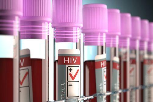 VIH : des tests en hausse et des découvertes de séropositivité en baisse