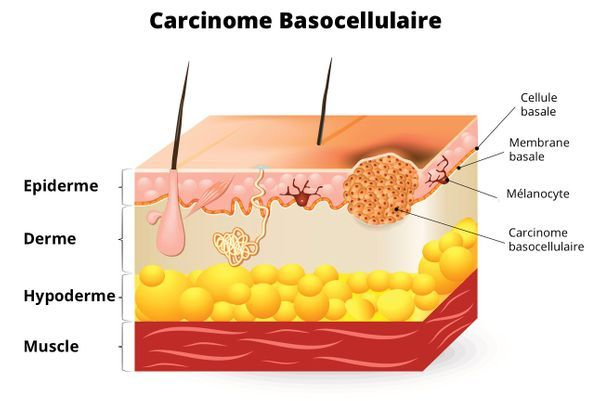 carcinome basocellulaire