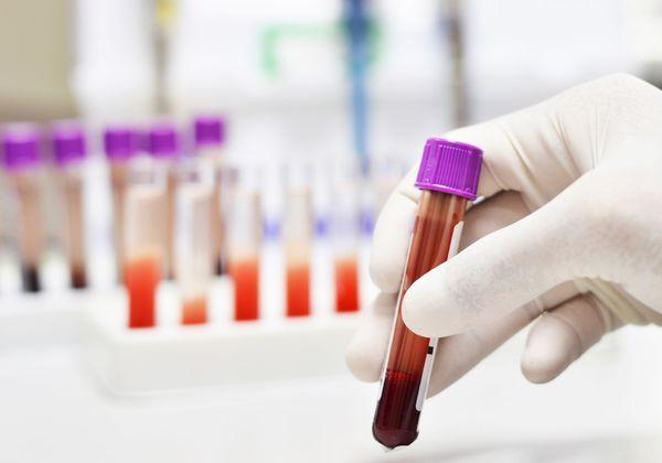Hémogramme formule leucocytaire