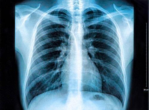 résultats radiographie