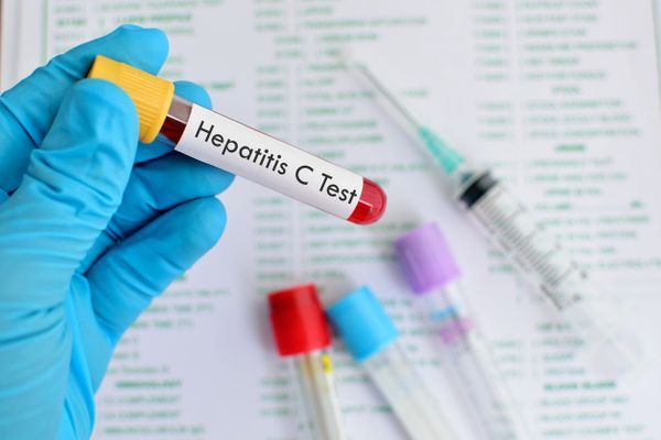 sérologie de l'hépatite C