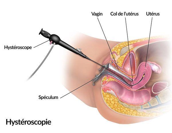 Shéma de l'hystéroscopie