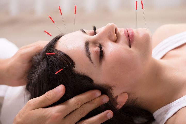 Le lifting par acupuncture