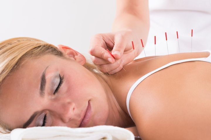acupuncture-stress