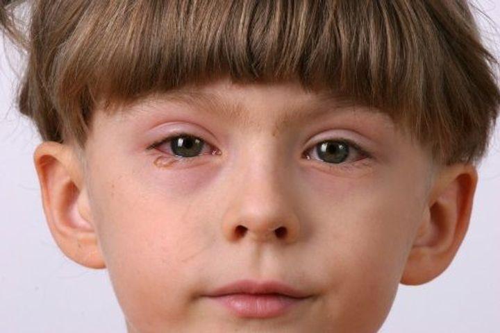 yeux rouges síntomas de diabetes
