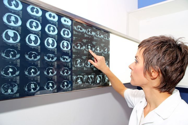 dépistage cancer du poumon