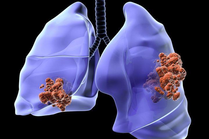 stades de cancer du poumon