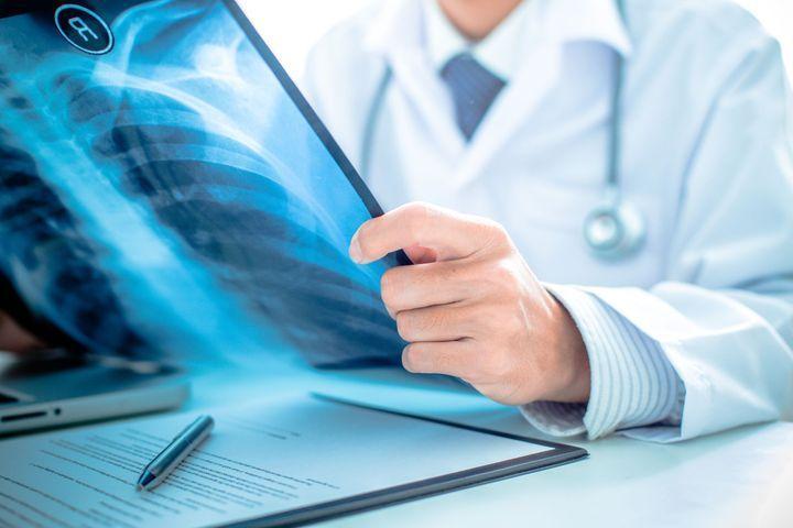 Diagnostic du cancer du poumon