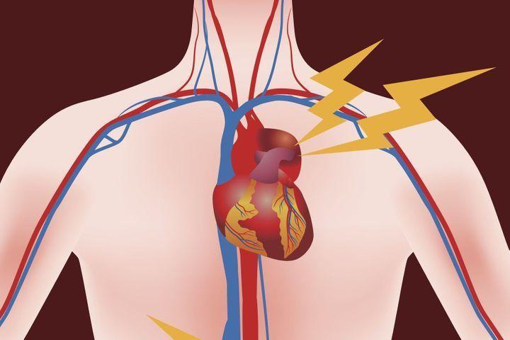 Cholestérol et infarctus