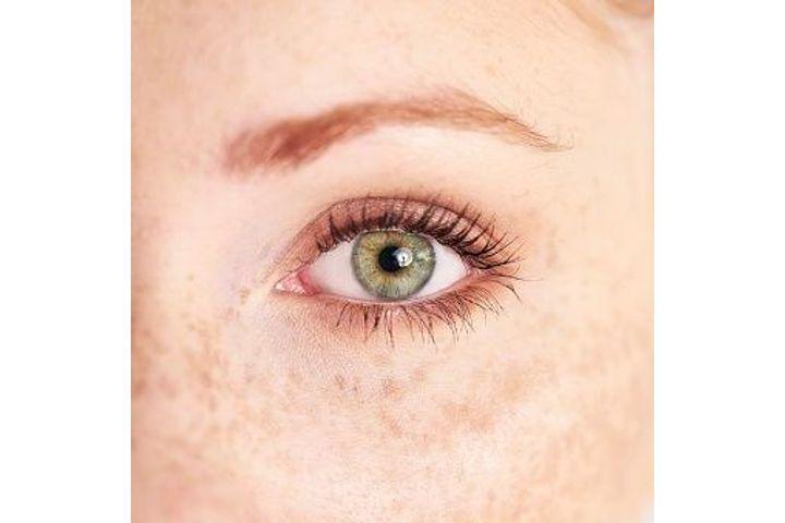 Observation pupille œil