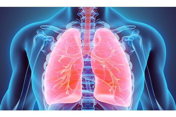 cancer primitif bronches
