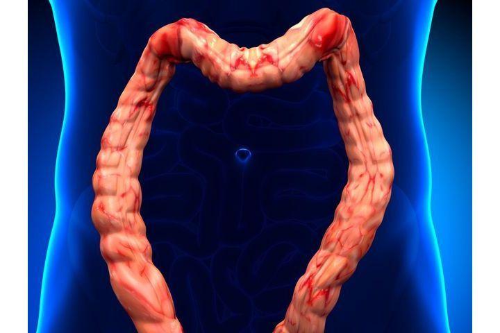 colite dolicocolon purificare il fegato per dimagrire