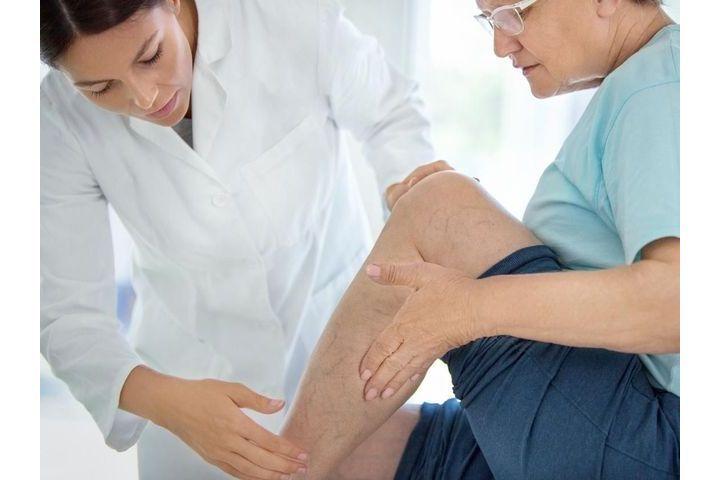 Jambes lourdes diagnostic