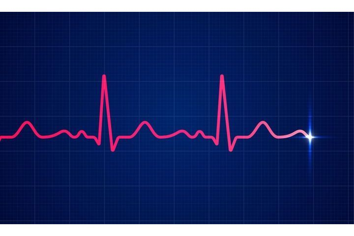 Fibrillation atriale : le suivi médical