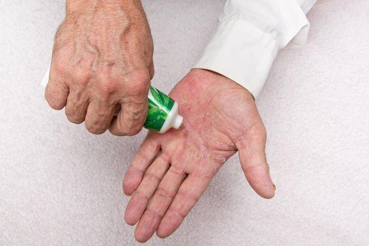Traitements du psoriasis