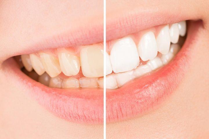Les dents jaunes