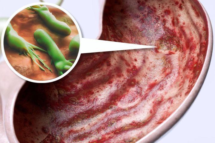 Complications des ulcères