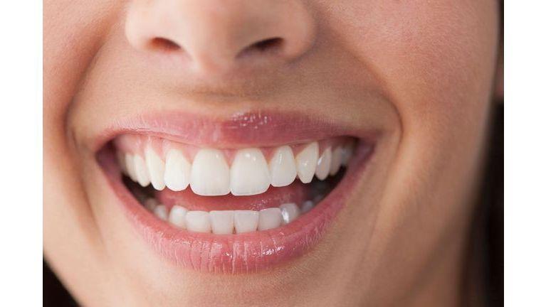 Savez-vous prendre soin de vos dents ?