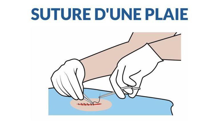 points de suture