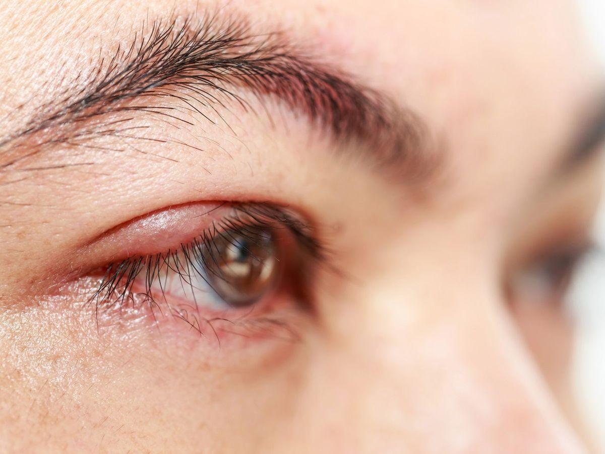 Blépharite Causes Symptômes Et Traitement Doctissimo