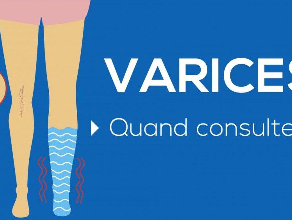 varice venics simptome foto)