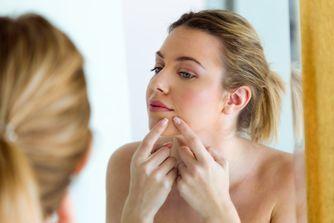 Dermatillomanie : quand percer ses boutons devient une obsession