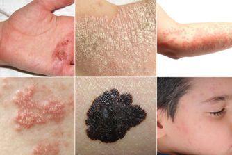 Photos pour distinguer les différentes maladies de peau
