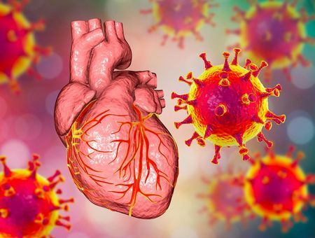 Myocardite : symptômes, causes, traitements