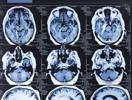 Le Covid-19 pourrait impacter le cerveau, même en cas de formes légères