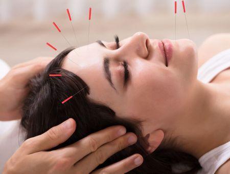 Le lifting par acupuncture comme méthode anti-âge