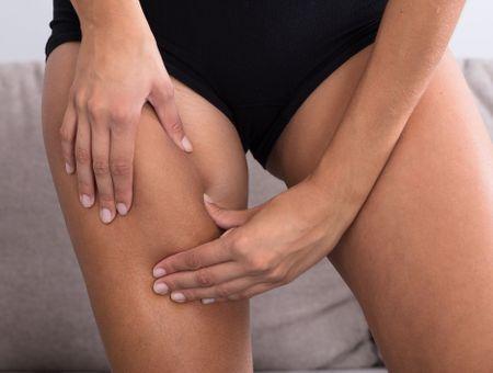 Cellulite : que penser du Bodysculptor ?