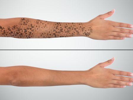 Détatouage : comment retirer un tatouage efficacement ?