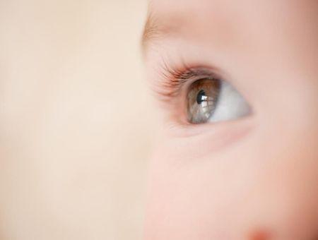 Conjonctivite du nourrisson: symptômes et traitements