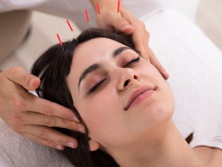 L'acupuncture en 10 questions