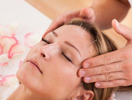 L'acupuncture, remède miracle contre les migraines ?