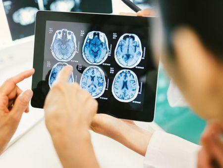 Un pacemaker cérébral contre la dépression
