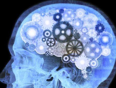 Soigner les TOC par la chirurgie avec la stimulation cérébrale profonde