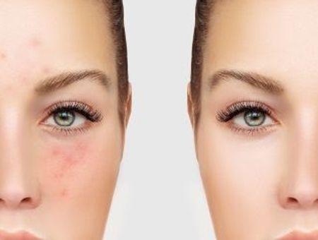 Tout savoir sur l'acné