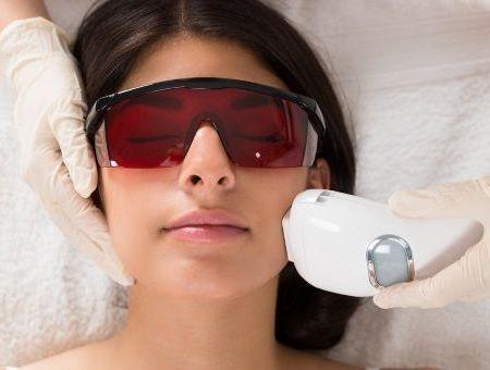 Cicatrices d'acné : la précision du laser