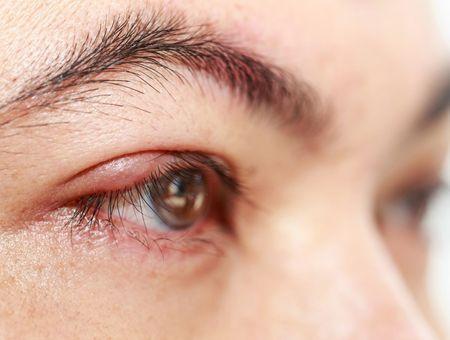 Blépharite : définition, symptômes et traitements