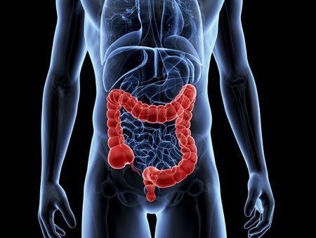 Cancer du côlon et du rectum