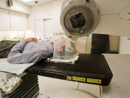 La radiothérapie face au cancer